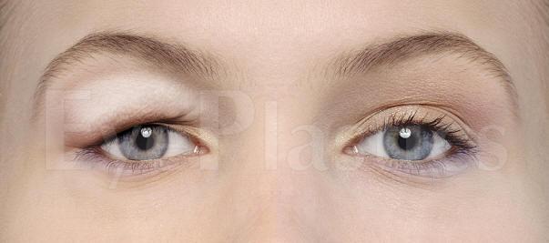 Eyelid_Pseudoptosis.jpg