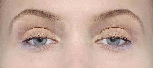 Eyelid_Ptosis.jpg
