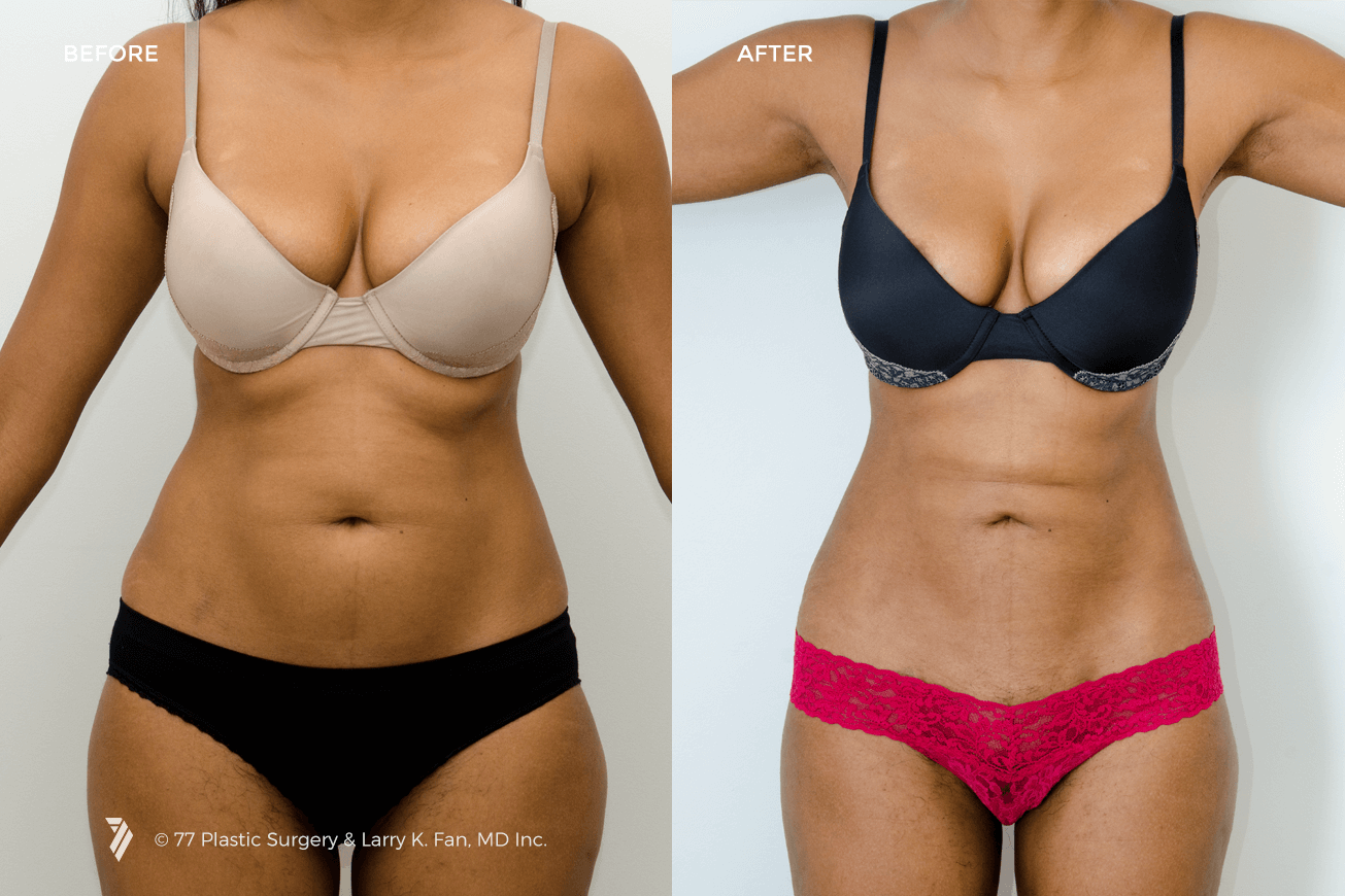 Liposuction Before After Pictures - RealSelf