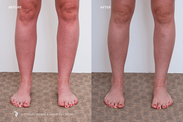 ankle-liposuction-before-and-after.png