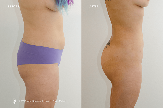 butt-liposuction-before-and-after-photos.png