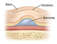 tummy tuck seroma