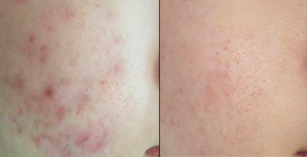 Scarlet SRF Before and after acne scars
