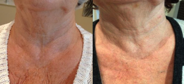 Scarlet SRF Before and after chest