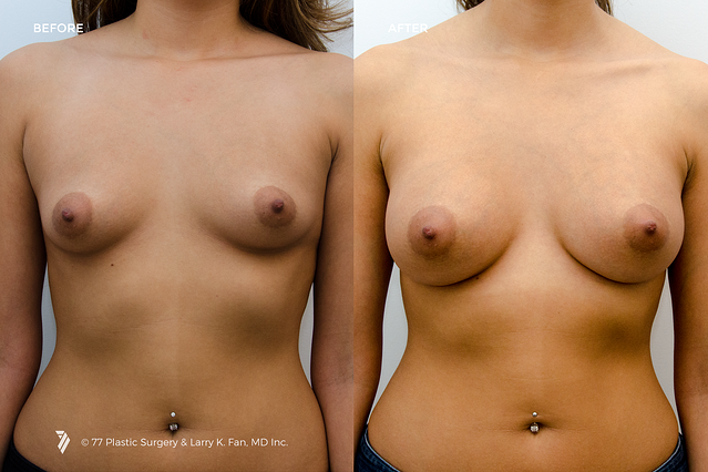 22001_Breast-Augmentation_1.png