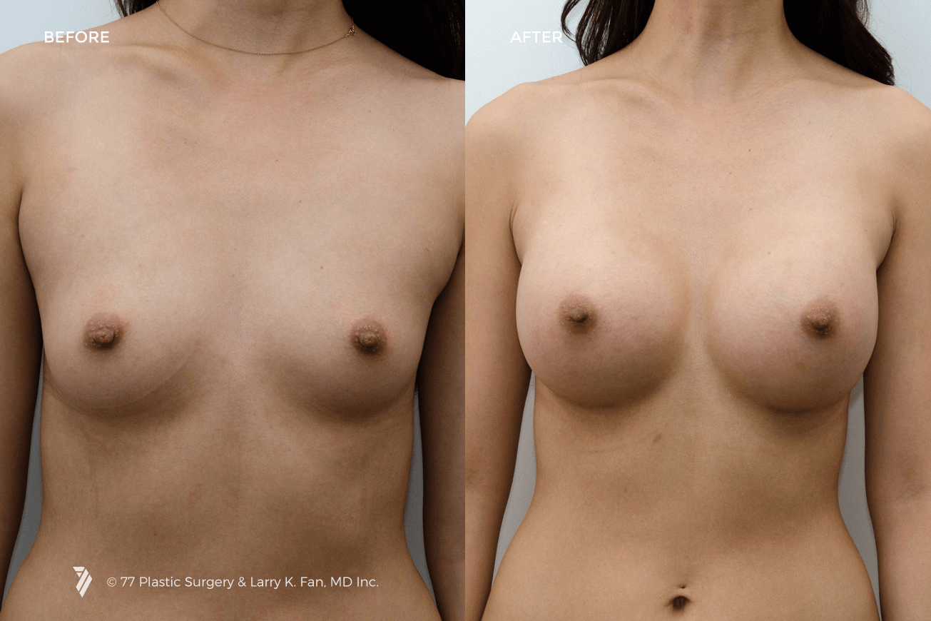 22005-Breast-Augmentation-1.png
