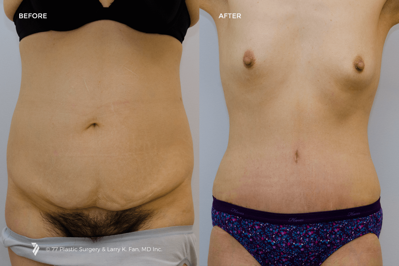 31001_Tummy_Tuck_1.png