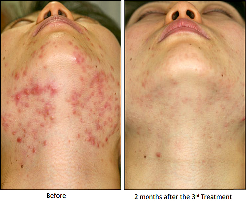 agnes-before-after-acne