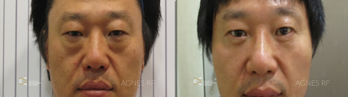 agnes-before-after-lower-eye