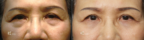 agnes-before-after-lower-eye2