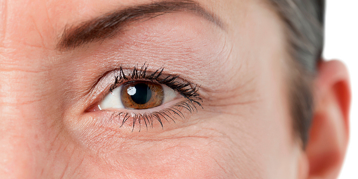 What Type of Eyelid Surgery is Best for You?