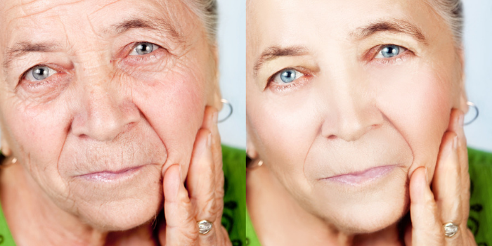 do-non-surgical-facelifts-actually-work