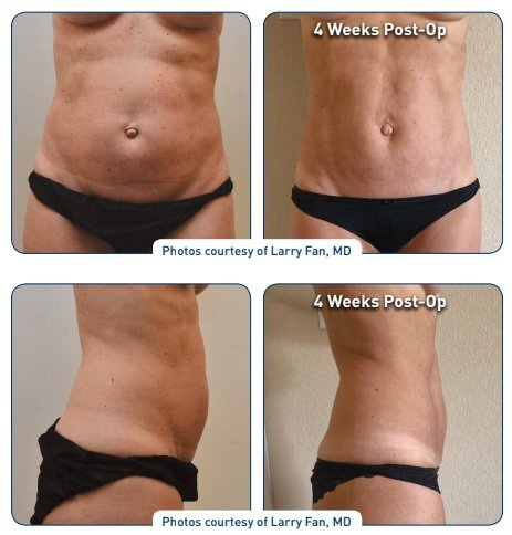 j plasma renuvion abdomen before and after