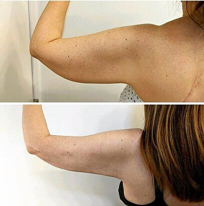 j plasma renuvion arms before and after