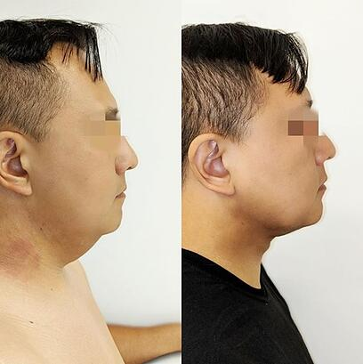 j plasma renuvion neck before and after