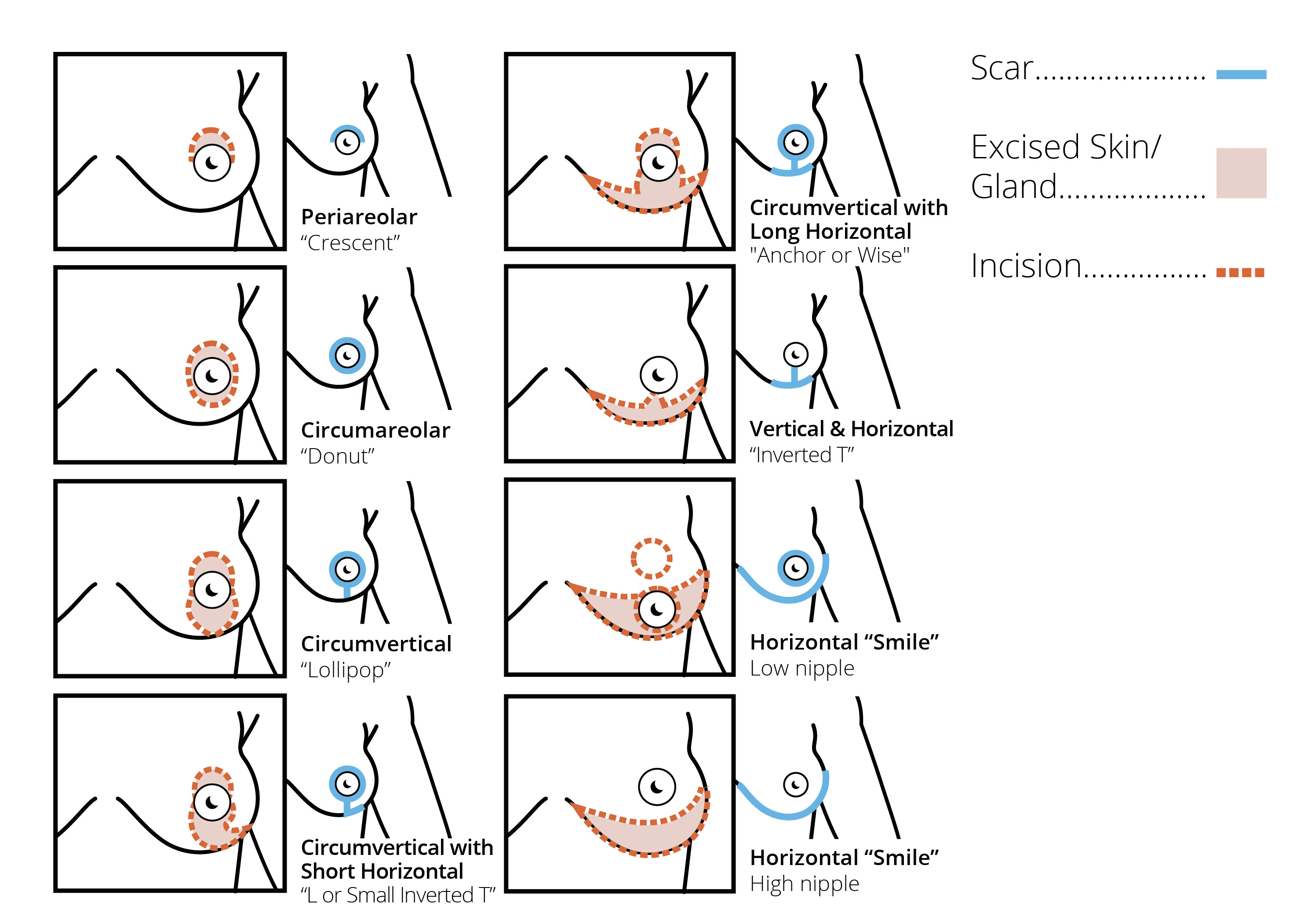 Breast-reduction-image1.png