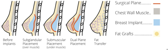 Fat_Transfer_is_a_Natural_Alternative.png