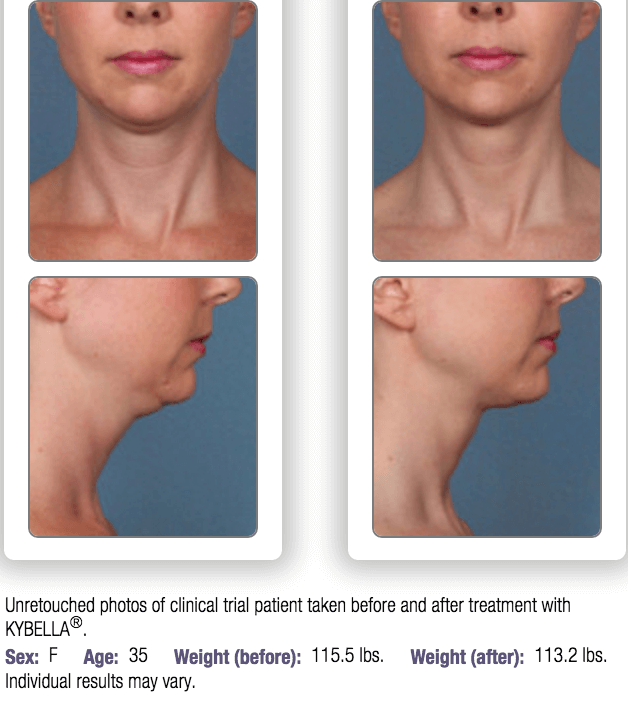 Kybella.Before_After.1_1