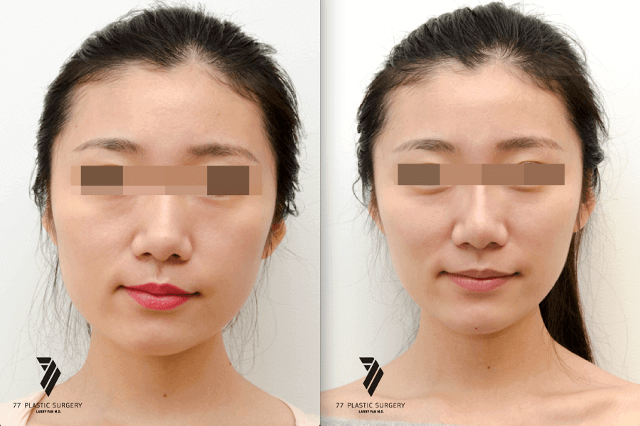 asian-before-after-jawreduction_1_1.png