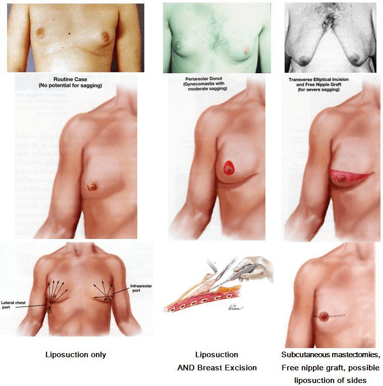 male-breast-2.png