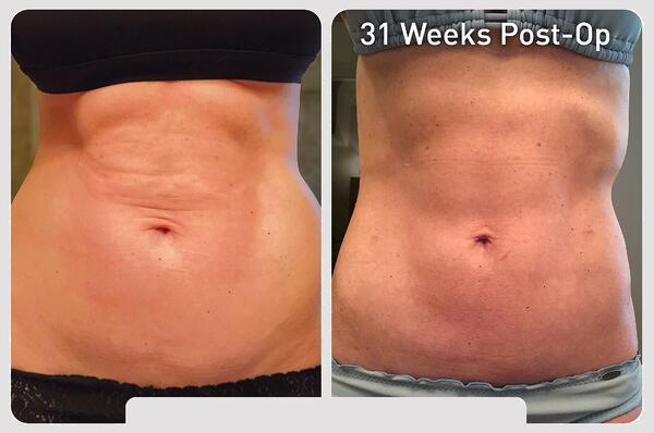 renuvion_before-after_patient1-abdominal_set1-front_300dpi_3