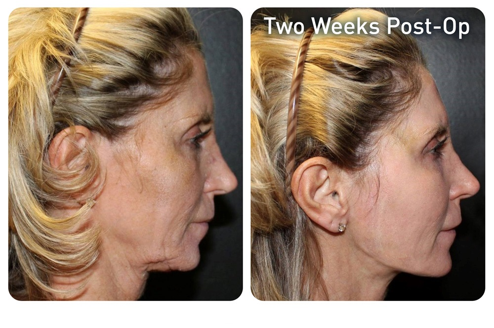 renuvion_before-after_patient3-neck_72dpi-1