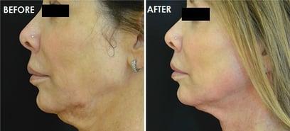 Scarlet SRF Before and after neck side