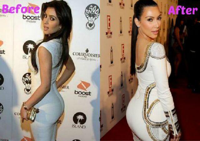 77-Plastic-Surgery_celebrities-with-butt-implants.jpg