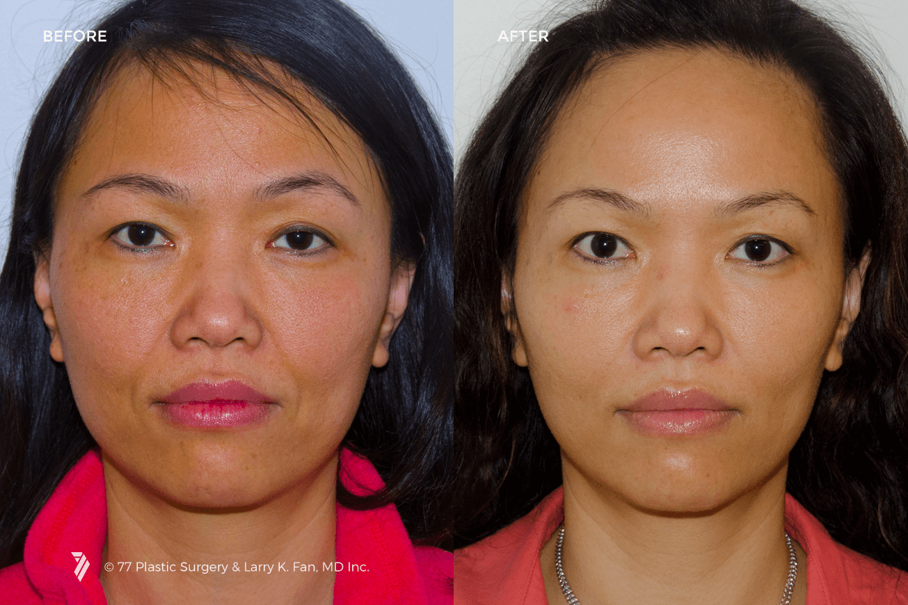 77Plastic-Juvederm-Injectable-Filler-Botox-1.png
