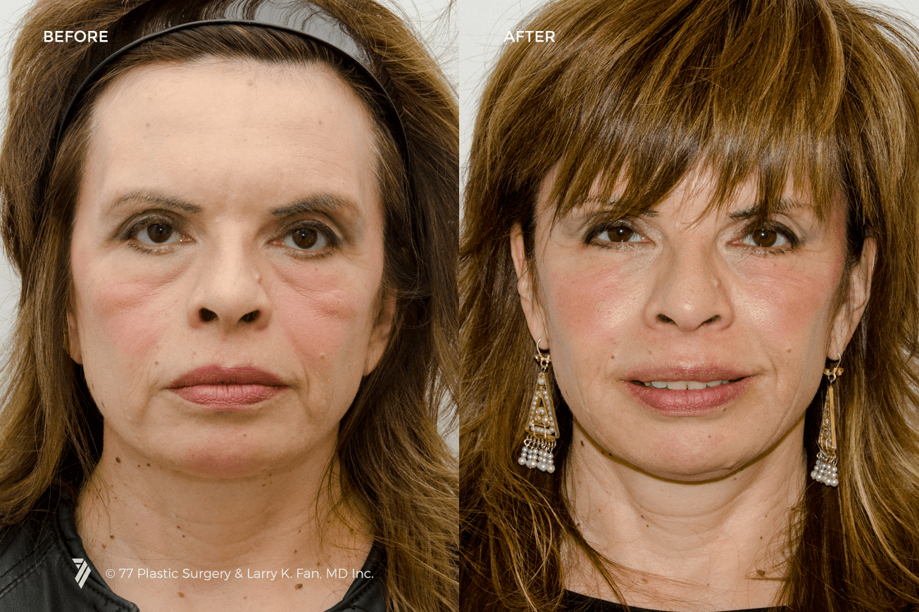 77plastic-Juvederm-Injectable-Fillers-1.png