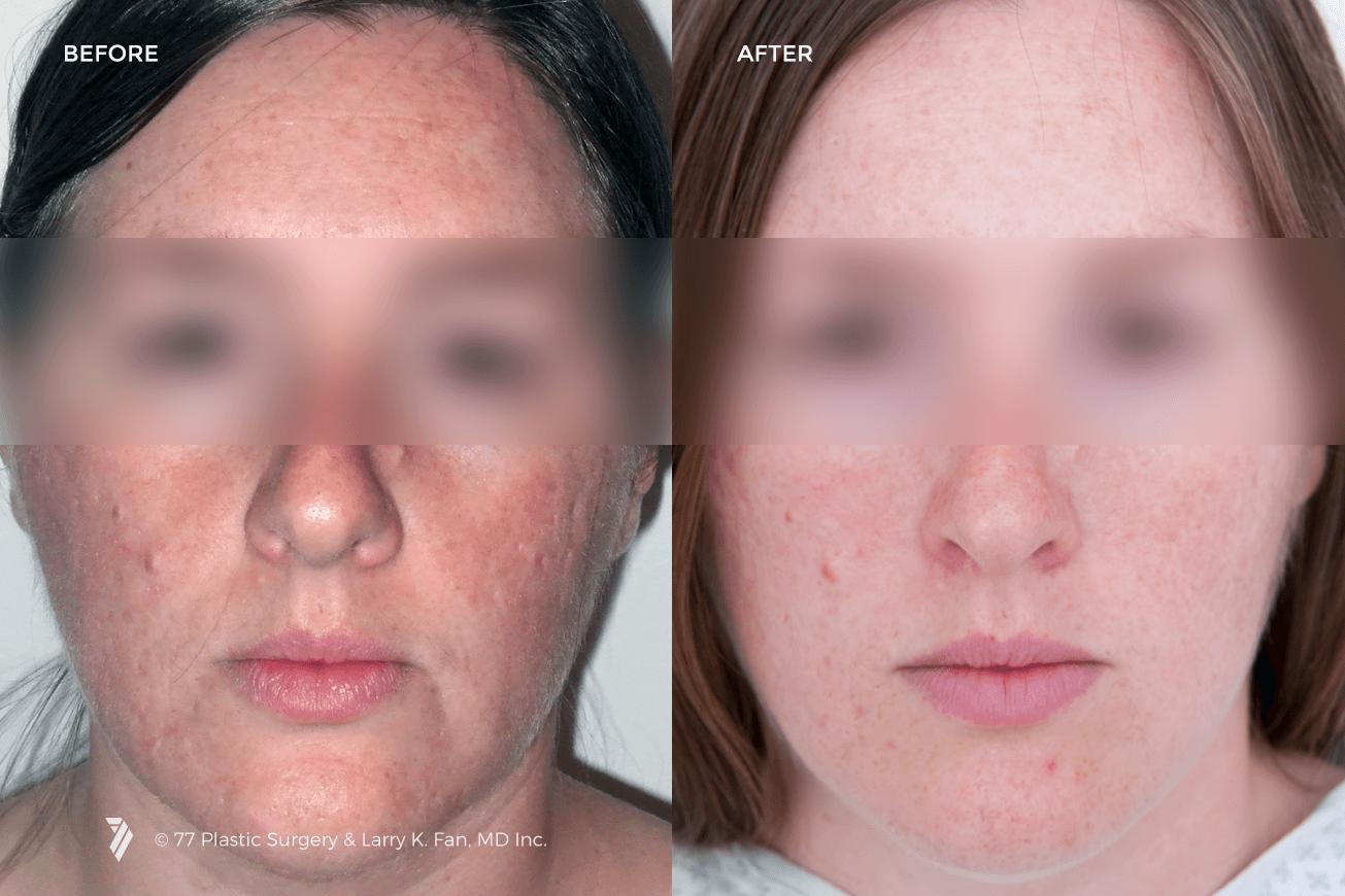 77plastic-Laser-Skin-Resurfacing-1.png