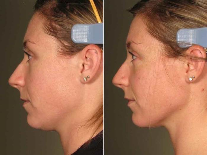 77plastic-ultherapy-before-after-face-neck-today-inline-large_95b3829691640091a7085a1a8e737409.today-inline-large.jpg