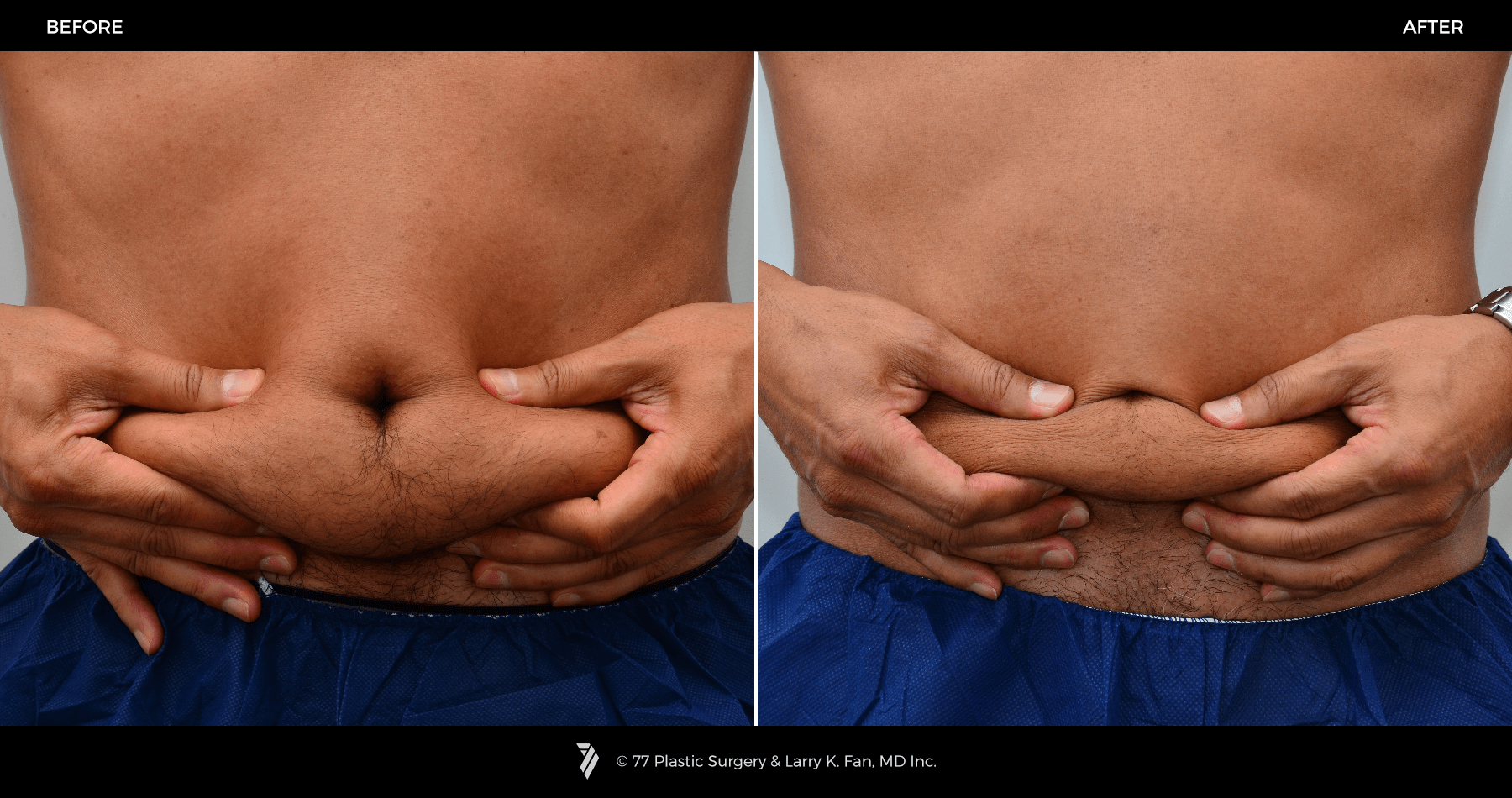 20 CoolSculpting Before and After Stories And How to Get the Same ...